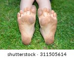 Small photo of Dirty muddy child's soles of the feet against green grass