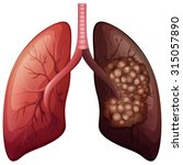 normal lung and lung cancer... | Shutterstock .eps vector #315057890