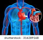 xrays of human heart... | Shutterstock .eps vector #316289168
