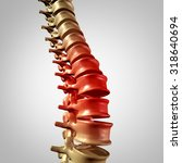 spine pain and lower back... | Shutterstock . vector #318640694