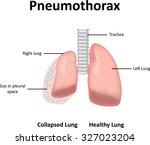 pneumothorax | Shutterstock .eps vector #327023204