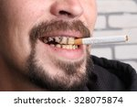 Bad Teeth Smoker Sick