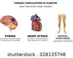 chronic complications of... | Shutterstock .eps vector #328135748