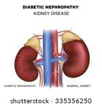 nephropathy  kidney disease... | Shutterstock .eps vector #335356250