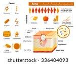 acne. health problems. medicine ... | Shutterstock .eps vector #336404093