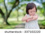 Little Asian Girl Has Allergie...