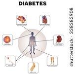 diabetes complications detailed ... | Shutterstock . vector #338382908