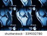mri image of knee joint leg | Shutterstock . vector #339032780