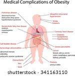 illustration of medical... | Shutterstock .eps vector #341163110