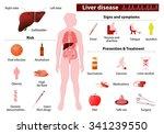 liver disease. medical... | Shutterstock .eps vector #341239550