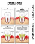 periodontitis and inflammation... | Shutterstock .eps vector #343669658