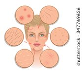 problems of skin | Shutterstock .eps vector #347769626