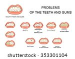 illustration of healthy gums... | Shutterstock .eps vector #353301104