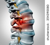 Herniated Disk Concept And...