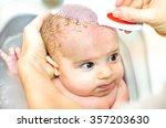 cradle cap comb removing bathe...