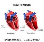 heart failure or congestive... | Shutterstock .eps vector #363195980