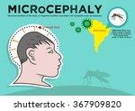 microcephaly or abnormal... | Shutterstock .eps vector #367909820
