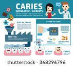 step of caries illustration... | Shutterstock .eps vector #368296796
