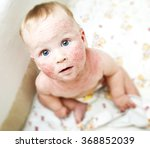little baby with dermatitis on... | Shutterstock . vector #368852039
