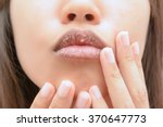 dry mouth | Shutterstock . vector #370647773