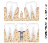 illustration showing the dental ... | Shutterstock .eps vector #373285810