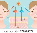 infographic skin illustration....   Shutterstock .eps vector #377673574