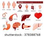 obesity and overweight... | Shutterstock .eps vector #378388768
