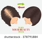 woman losing hair before and... | Shutterstock .eps vector #378791884