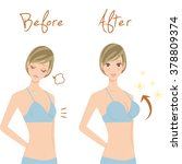 breast enhancement | Shutterstock .eps vector #378809374