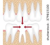 teeth are moving to fill empty... | Shutterstock .eps vector #379815100