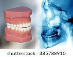 teeth model and x ray | Shutterstock . vector #385788910