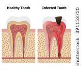 illustration showing pulpitis... | Shutterstock .eps vector #391153720