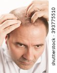 Small photo of Baldness Alopecia man hair loss haircare