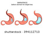 illustration of balloon stomach ... | Shutterstock .eps vector #394112713