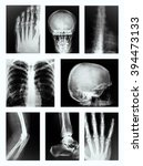 Collage Of Many X Rays