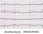 sinus heart rhythm on... | Shutterstock . vector #396419440