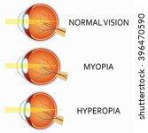 optical human eye defects.... | Shutterstock .eps vector #396470590