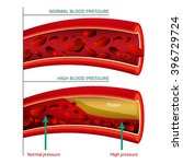blood vector image   Shutterstock .eps vector #396729724