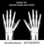 Bones Of Human Hands And Wrist...