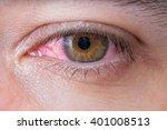 Macro Of Conjunctivitis Red Eye.