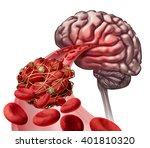 brain blood clot medical... | Shutterstock . vector #401810320