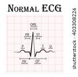 normal ecg  electrocardiogram   ... | Shutterstock .eps vector #403308226