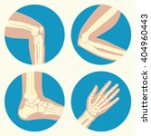 Set Of Human Knee  Elbow And...