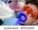 teeth whitening procedure   Shutterstock . vector #405520690