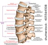 Spine Disc Problems ...