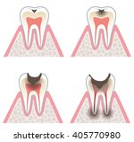 progression of tooth decay | Shutterstock . vector #405770980