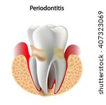 image tooth caries disease....   Shutterstock . vector #407323069