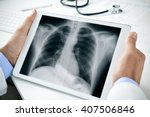 Stock photo closeup of a young caucasian doctor man sitting at his office desk observing a chest radiograph in 407506846