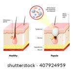 healthy skin and papules   Shutterstock .eps vector #407924959