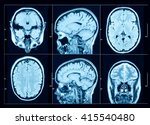 closeup of a ct scan with brain | Shutterstock . vector #415540480